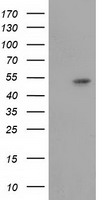 GSS / Glutathione Synthetase Antibody - HEK293T cells were transfected with the pCMV6-ENTRY control (Left lane) or pCMV6-ENTRY GSS (Right lane) cDNA for 48 hrs and lysed. Equivalent amounts of cell lysates (5 ug per lane) were separated by SDS-PAGE and immunoblotted with anti-GSS.