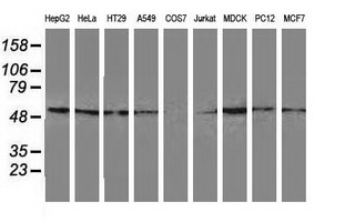 GSS / Glutathione Synthetase Antibody - Western blot of extracts (35 ug) from 9 different cell lines by using anti-GSS monoclonal antibody.
