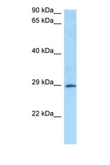 GSTA4 antibody Western blot of 1 Cell lysate. Antibody concentration 1 ug/ml.  This image was taken for the unconjugated form of this product. Other forms have not been tested.