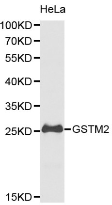 Western blot of GSTM2 pAb in extracts from Hela cells.