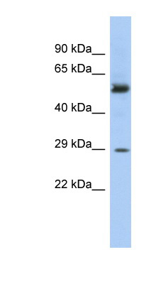 GSTM3 antibody Western blot of Fetal Stomach lysate. This image was taken for the unconjugated form of this product. Other forms have not been tested.