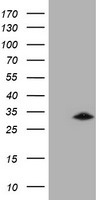 HEK293T cells were transfected with the pCMV6-ENTRY control (Left lane) or pCMV6-ENTRY GSTO2 (Right lane) cDNA for 48 hrs and lysed. Equivalent amounts of cell lysates (5 ug per lane) were separated by SDS-PAGE and immunoblotted with anti-GSTO2.
