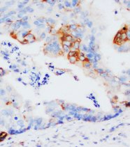 GSTP1 / GST Pi Antibody -  This image was taken for the unconjugated form of this product. Other forms have not been tested.