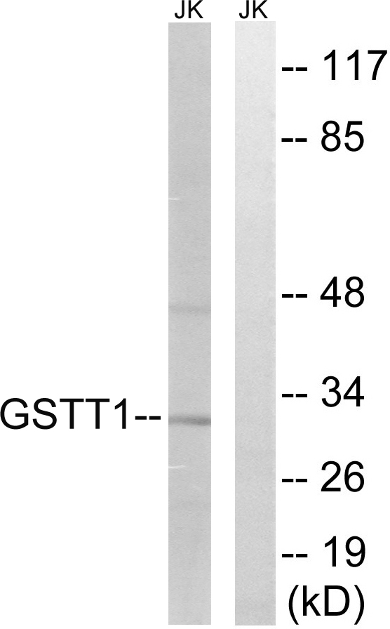 GSTT1+4 Antibody - Western blot analysis of lysates from Jurkat cells, using GSTT1/4 Antibody. The lane on the right is blocked with the synthesized peptide.