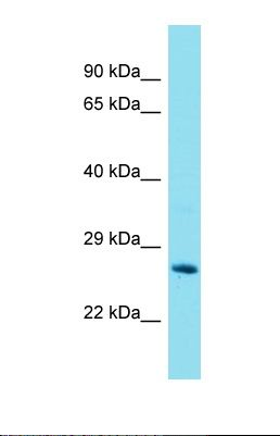 Western blot of Mouse Liver. Gstt2 antibody dilution 1.0 ug/ml.  This image was taken for the unconjugated form of this product. Other forms have not been tested.