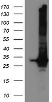GSTT2 Antibody - HEK293T cells were transfected with the pCMV6-ENTRY control (Left lane) or pCMV6-ENTRY GSTT2 (Right lane) cDNA for 48 hrs and lysed. Equivalent amounts of cell lysates (5 ug per lane) were separated by SDS-PAGE and immunoblotted with anti-GSTT2.