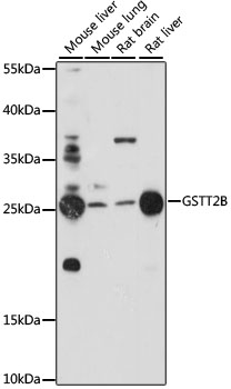 GSTT2B Antibody - Western blot analysis of extracts of various cell lines, using GSTT2B antibody at 1:1000 dilution. The secondary antibody used was an HRP Goat Anti-Rabbit IgG (H+L) at 1:10000 dilution. Lysates were loaded 25ug per lane and 3% nonfat dry milk in TBST was used for blocking. An ECL Kit was used for detection and the exposure time was 120s.