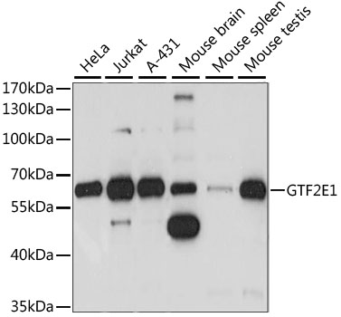 GTF2E1 Antibody - Western blot analysis of extracts of various cell lines, using GTF2E1 antibody at 1:1000 dilution. The secondary antibody used was an HRP Goat Anti-Rabbit IgG (H+L) at 1:10000 dilution. Lysates were loaded 25ug per lane and 3% nonfat dry milk in TBST was used for blocking. An ECL Kit was used for detection and the exposure time was 5S.