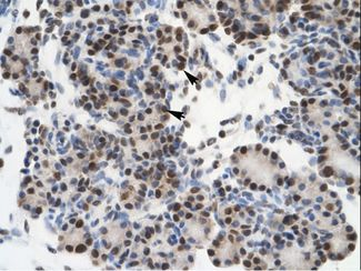 GTF2I / TFII-I antibody ARP31910_P050-NP_127493-GTF2I (general transcription factor II, i) Antibody was used in IHC to stain formalin-fixed, paraffin-embedded human pancreas.  This image was taken for the unconjugated form of this product. Other forms have not been tested.