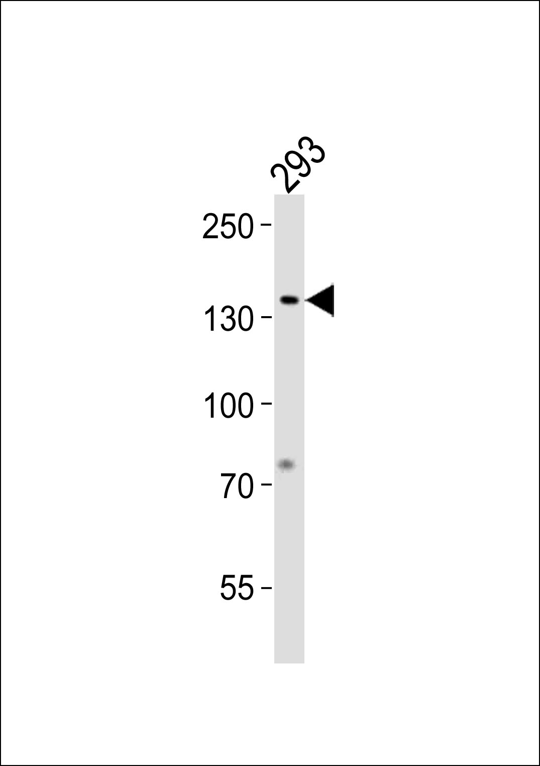 GTF2I Antibody western blot of 293 cell line lysates (35 ug/lane). The GTF2I antibody detected the GTF2I protein (arrow).