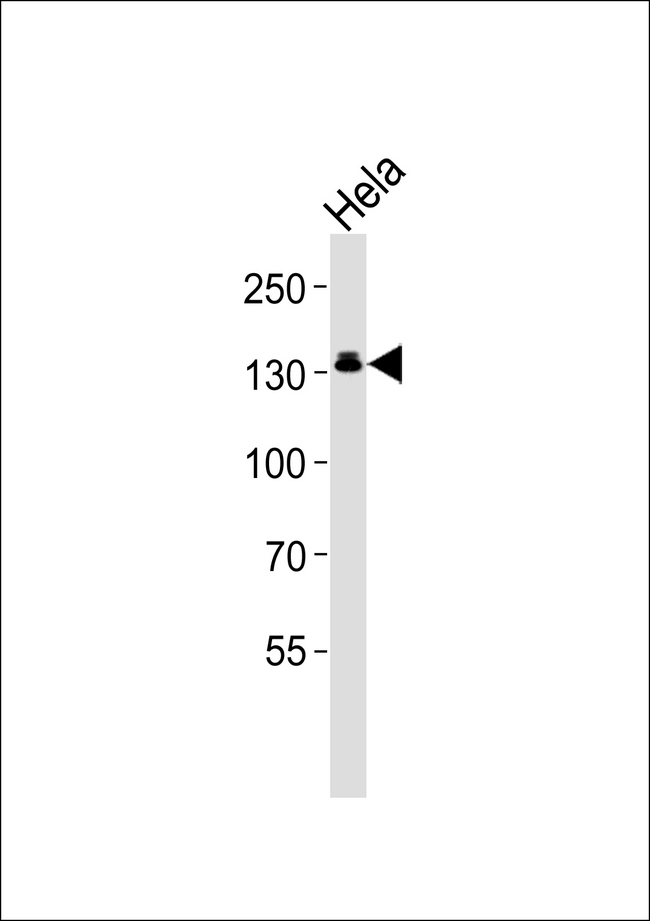 Western blot of lysate from HeLa cell line, using GTF2I Antibody. Antibody was diluted at 1:1000. A goat anti-rabbit IgG H&L (HRP) at 1:5000 dilution was used as the secondary antibody. Lysate at 35ug.