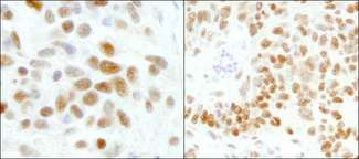 Detection of Human and Mouse GTF2I/TFII-I by Immunohistochemistry. Sample: FFPE section of human Ewing sarcoma (left) and mouse teratoma (right). Antibody: Affinity purified rabbit anti-GTF2I/TFII-I used at a dilution of 1:200 (1 Detection: DAB.