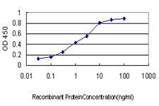 Detection limit for recombinant GST tagged GTF2I is approximately 0.03 ng/ml as a capture antibody.