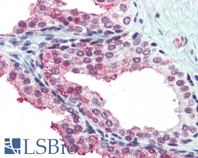 Anti-TFII-I antibody IHC of human prostate. Immunohistochemistry of formalin-fixed, paraffin-embedded tissue after heat-induced antigen retrieval. Antibody LS-B3097 concentration 10 ug/ml.