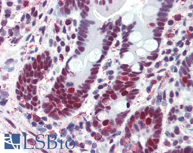 Anti-TFII-I antibody IHC of human small intestine. Immunohistochemistry of formalin-fixed, paraffin-embedded tissue after heat-induced antigen retrieval. Antibody LS-B3097 concentration 10 ug/ml.