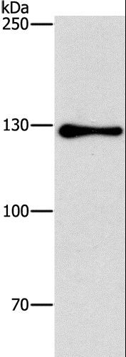 Western blot analysis of HepG2 cell, using GTF2I Polyclonal Antibody at dilution of 1:350.