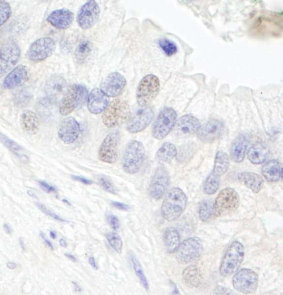 GTF3C1 Antibody - Detection of Human GTF3C1/TFIIIC220 by Immunohistochemistry. Sample: FFPE section of human prostate carcinoma. Antibody: Affinity purified rabbit anti-GTF3C1/TFIIIC220 used at a dilution of 1:1000 (1 Detection: DAB.