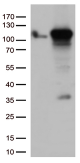 GTF3C4 Antibody - HEK293T cells were transfected with the pCMV6-ENTRY control. (Left lane) or pCMV6-ENTRY GTF3C4. (Right lane) cDNA for 48 hrs and lysed. Equivalent amounts of cell lysates. (5 ug per lane) were separated by SDS-PAGE and immunoblotted with anti-GTF3C4. (1:500)