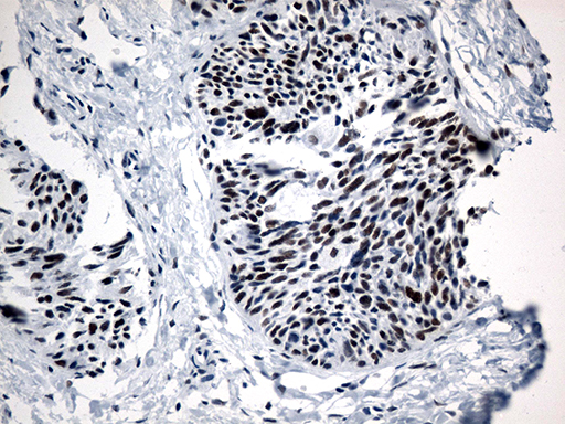 GTF3C4 Antibody - Immunohistochemical staining of paraffin-embedded Carcinoma of Human thyroid tissue using anti-GTF3C4 mouse monoclonal antibody. (Heat-induced epitope retrieval by 1mM EDTA in 10mM Tris buffer. (pH8.5) at 120°C for 3 min. (1:500)