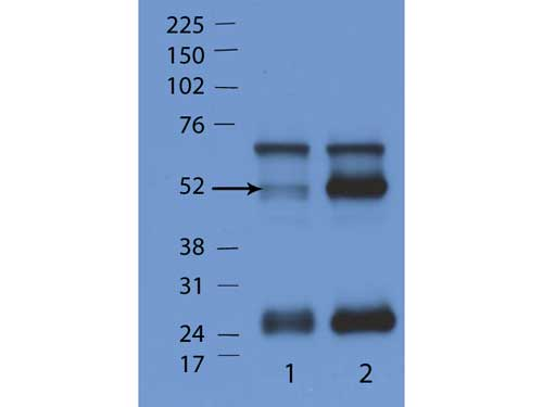 GTPase Activating Protein (GAP) Antibody - Western Blot of rabbit Anti-IFN GTpase antibody. Lane 1: WT mouse. Lane 2: IFN gamma gene KO mouse. Load: 35 µg per lane. Primary antibody: IFN GTpases antibody at 1:1000 for overnight at 4°C. Secondary antibody: rabbit secondary antibody at 1:10,000 for 45 min at RT. Block: 5% BLOTTO overnight at 4°C. Predicted/Observed size: 52 kDa for IFN GTpases antibody. Other band(s): nonspecific.