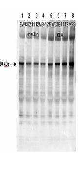 GYS1 / Glycogen Synthase Antibody - Affinity Purified Phospho-specific pS641 antibody to human muscle Glycogen Synthase (GS). Lane 1: mouse cardiac myocyte lysate mock treated. Lane 2: mouse cardiac myocyte lysate insulin treated at 10nM for 15'. Lane 3: mouse cardiac myocyte lysate insulin treated at 100nM for 15'. Lane 4: mouse cardiac myocyte lysate insulin treated at 1nM for 15'. Lane 5: mouse cardiac myocyte lysate mock treated. Lane 6: mouse cardiac myocyte lysate CLA treated at 4nM for 45'. Lane 7: mouse cardiac myocyte lysate CLA treated at 20nM for 45'. Lane 8: mouse cardiac myocyte lysate CLA treated at 100nM for 45'. Load: 12µL. Primary Antibody: pS641 at 1:1000. Secondary Antibody: HRP conjugated Gt-a-Rabbit IgG at 1:5,000 dilution preceded color development using Amersham's substrate system. Other detection methods will yield similar results.