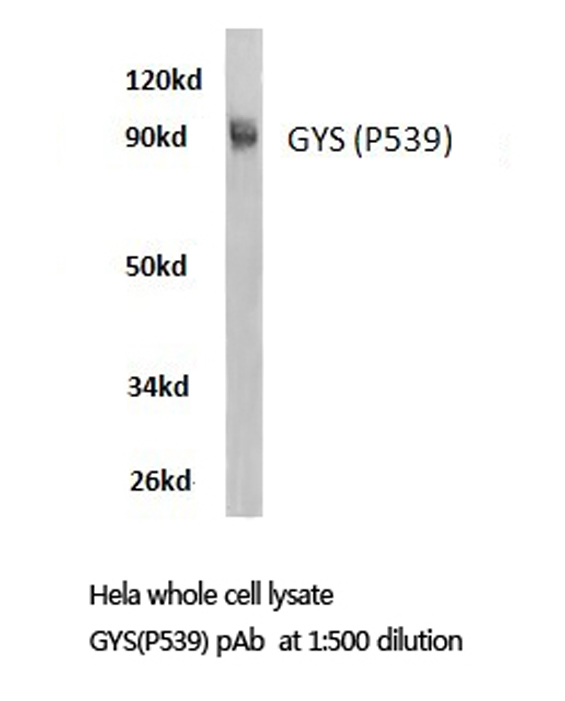 Western blot of Glycogen Synthase (P539) pAb in extracts from HeLa cells.