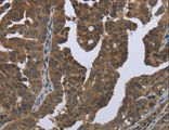 Immunohistochemistry of paraffin-embedded Human brain using GYS2 Polyclonal Antibody at dilution of 1:50.