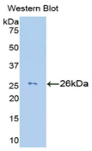 Western blot of recombinant GZMM / Granzyme M.  This image was taken for the unconjugated form of this product. Other forms have not been tested.