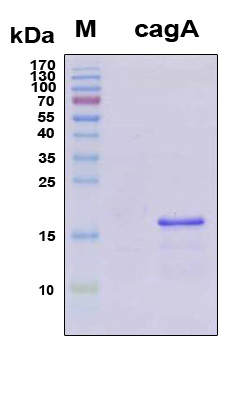 H. pylori CagA Protein - SDS-PAGE under reducing conditions and visualized by Coomassie blue staining