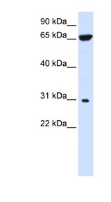 HACD4 / PTPLAD2 Antibody - PTPLAD2 antibody Western blot of 293T cell lysate. This image was taken for the unconjugated form of this product. Other forms have not been tested.