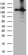 HACE1 Antibody - HEK293T cells were transfected with the pCMV6-ENTRY control. (Left lane) or pCMV6-ENTRY HACE1. (Right lane) cDNA for 48 hrs and lysed