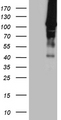 HEK293T cells were transfected with the pCMV6-ENTRY control. (Left lane) or pCMV6-ENTRY HACE1. (Right lane) cDNA for 48 hrs and lysed. Equivalent amounts of cell lysates. (5 ug per lane) were separated by SDS-PAGE and immunoblotted with anti-HACE1. (1:500)