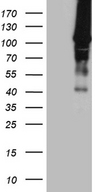 HACE1 Antibody - HEK293T cells were transfected with the pCMV6-ENTRY control. (Left lane) or pCMV6-ENTRY HACE1. (Right lane) cDNA for 48 hrs and lysed. Equivalent amounts of cell lysates. (5 ug per lane) were separated by SDS-PAGE and immunoblotted with anti-HACE1. (1:500)