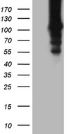 HACE1 Antibody - HEK293T cells were transfected with the pCMV6-ENTRY control. (Left lane) or pCMV6-ENTRY HACE1. (Right lane) cDNA for 48 hrs and lysed. Equivalent amounts of cell lysates. (5 ug per lane) were separated by SDS-PAGE and immunoblotted with anti-HACE1. (1:2000)