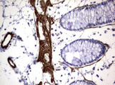 IHC of paraffin-embedded Human colon tissue using anti-TSC1 mouse monoclonal antibody.