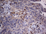 IHC of paraffin-embedded Carcinoma of Human lung tissue using anti-TSC1 mouse monoclonal antibody.