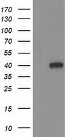 HAO1 Antibody - HEK293T cells were transfected with the pCMV6-ENTRY control (Left lane) or pCMV6-ENTRY HAO1 (Right lane) cDNA for 48 hrs and lysed. Equivalent amounts of cell lysates (5 ug per lane) were separated by SDS-PAGE and immunoblotted with anti-HAO1.