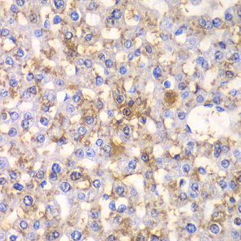 HAPLN1 Antibody - Immunohistochemistry of paraffin-embedded rat liver using HAPLN1 antibody at dilution of 1:100 (40x lens).