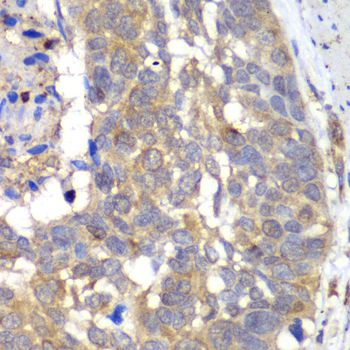 HAPLN1 Antibody - Immunohistochemistry of paraffin-embedded human esophageal cancer using HAPLN1 antibody at dilution of 1:100 (40x lens).