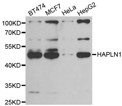 HAPLN1 Antibody - Western blot analysis of extracts of various cell lines, using HAPLN1 antibody at 1:1000 dilution. The secondary antibody used was an HRP Goat Anti-Rabbit IgG (H+L) at 1:10000 dilution. Lysates were loaded 25ug per lane and 3% nonfat dry milk in TBST was used for blocking. An ECL Kit was used for detection and the exposure time was 90s.