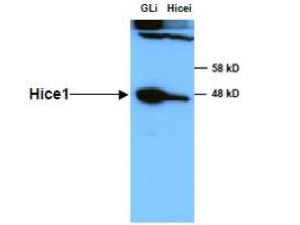 Anti-HICE1 in Western blot of Immunochemicals' Anti-HICE1 Antibody shows detection of a 45 kDa band corresponding to endogenous HICE1 in lysates of S phase HeLa cells silenced for either control Luciferase or HICE1. In right lane (HICE1i): lysates from sh-HICE1 RNAi-treated lentivirus-infected cells. In left lane (GLi): lysates from sh-Luciferase lentivirus-infected cells as control. Anti-HICE1 Antibody was used at 1:10000. Molecular weight estimation was made by comparison by prestained MW markers. ECL was used for detection. Personal communication, Kyung S. Lee, NCI, Bethesda, MD.
