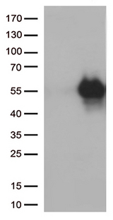 HAVCR2 / TIM-3 Antibody - HEK293T cells were transfected with the pCMV6-ENTRY control. (Left lane) or pCMV6-ENTRY HAVCR2. (Right lane) cDNA for 48 hrs and lysed