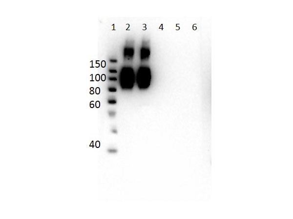 HBB / Hemoglobin Beta Antibody - Western Blot of Mouse Anti-Hemoglobin A (beta chain) Antibody. Lane 1: Molecular Weight Ladder. Lane 2: HbA peptide conjugated to BSA. Lane 3: HbA-2 peptide conjugated to BSA. Lane 4: HbC peptide conjugated to BSA. Lane 5: HbF peptide conjugated to BSA. Lane 6: HbS peptide conjugated to BSA. Load: 50ng per lane. Primary antibody: Anti-HbA antibody at 1µg/mL overnight at 4°C. Secondary antibody: Rabbit Anti-Mouse secondary antibody at 1:40,000 for 30 min at RT. Block: MB-073 for 30 min RT. Predicted/Observed: Reactivity seen in Lane 2 specific to HbA and cross reactivity to HbA-2 seen in Lane 3.