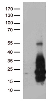 HBEGF / HB EGF Antibody - HEK293T cells were transfected with the pCMV6-ENTRY control. (Left lane) or pCMV6-ENTRY HBEGF. (Right lane) cDNA for 48 hrs and lysed. Equivalent amounts of cell lysates. (5 ug per lane) were separated by SDS-PAGE and immunoblotted with anti-HBEGF. (1:2000)