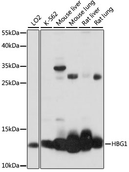 HBG1 / Fetal Hemoglobin Antibody - Western blot analysis of extracts of various cell lines, using HBG1 antibody at 1:1000 dilution. The secondary antibody used was an HRP Goat Anti-Rabbit IgG (H+L) at 1:10000 dilution. Lysates were loaded 25ug per lane and 3% nonfat dry milk in TBST was used for blocking. An ECL Kit was used for detection and the exposure time was 30s.