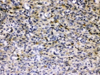HBV / Hepatitis B Virus Antibody - IHC testing of FFPE human Hepatitis B+ tissue with Hepatitis B Virus antibody at 0.5ug/ml. HIER: steam section in pH6 citrate buffer for 20 min and allow to cool prior to testing.
