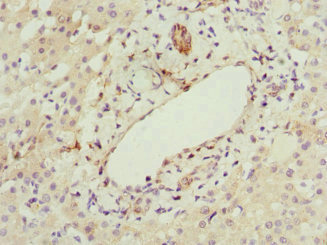 HBXIP Antibody - Immunohistochemistry of paraffin-embedded human liver cancer at dilution 1:100