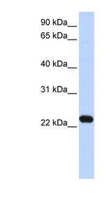 HBXIP antibody Western blot of Transfected 293T cell lysate. This image was taken for the unconjugated form of this product. Other forms have not been tested.
