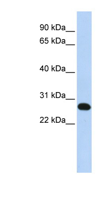 METTL21A / FAM119A antibody LS-C102481 Western blot of Fetal Brain lysate.  This image was taken for the unconjugated form of this product. Other forms have not been tested.