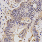 HCF1 / HCFC1 Antibody - Immunohistochemistry of paraffin-embedded human rectal cancer tissue.
